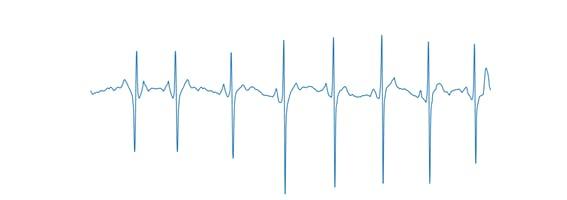 Figure 4, Axis-free ECG signal.