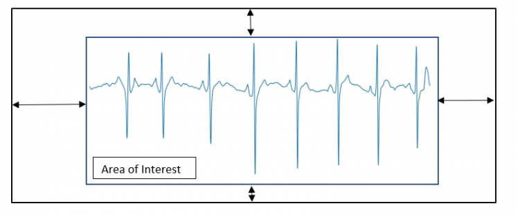 Figure 5, Extraction of the area of interest.
