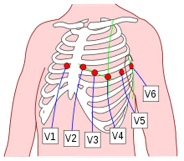 Figure 17. Placement of 6 chest leads.